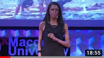 Unmask your potential | Turia Pitt | TEDxMacquarieUniversity